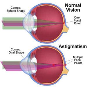 eye-astigmatism, Skeleton