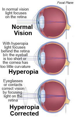 Christopherson Eye Clinic Demonstrates how Hyperopia is Corrected