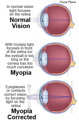 How Myopia is Corrected with Eyeglasses