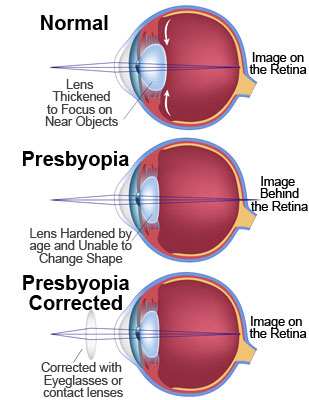 Presbyopia Corrected with Lenses and Eyeglasses
