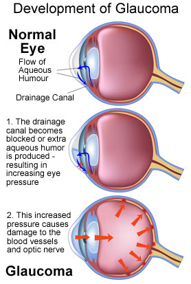 Development of Glaucoma